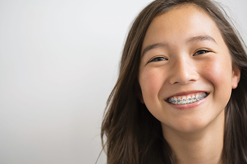 Braces at Ferris Orthodontic Group | Santa Barbara & Goleta CA Orthodontist