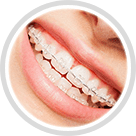 Braces by Ferris Orthodontic Group | Santa Barbara & Goleta CA
