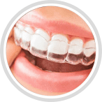 Invisalign at Ferris Orthodontic Group | Santa Barbara & Goleta CA