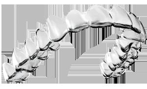 Santa Barbara & Goleta CA Invisalign | Ferris Orthodontic Group