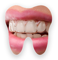 a tooth icon showing a pair of teeth wearing an invisalign