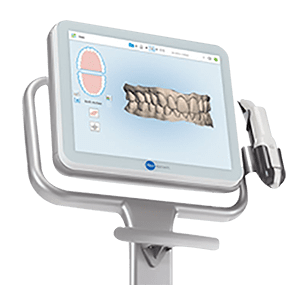 itero scanner displaying the scanned view of the teeth