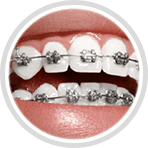 Metal braces helps you achieve the picture-perfect smile you have always wanted and have fun switching colors throughout the process