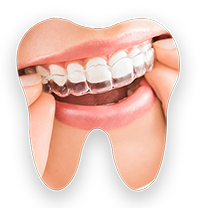 Invisalign Ferris Orthodontic Group