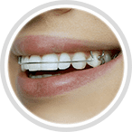 Retainers help you maintain the beauty of your smile after orthodontic treatment | Ferris Orthodontic Group